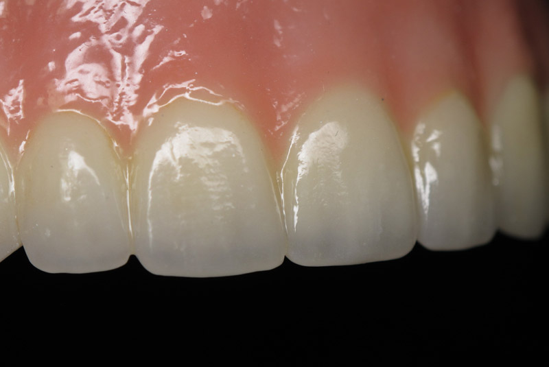 Ceramic   Inter-Pro Dental Lab